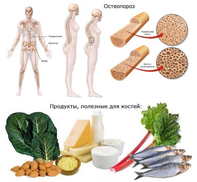 остеопороз профилактика