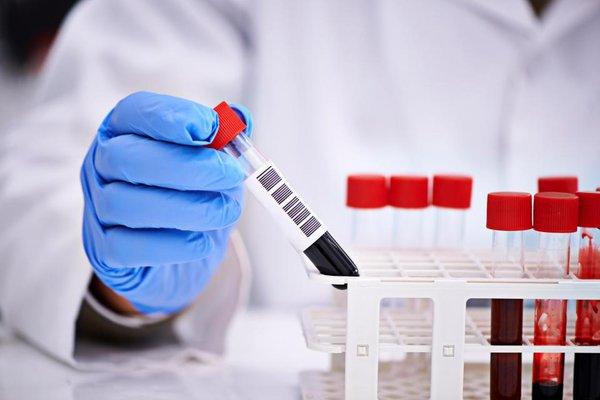 расшифровать анализ крови