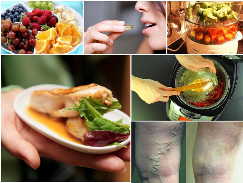 белковая диета при варикозе